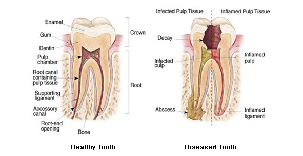 healthy-diseased-tooth